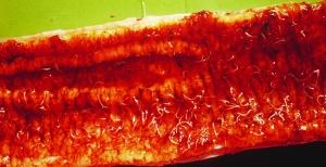 Worms in intestineSARAHSHEPHERD